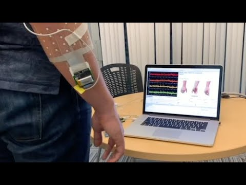 An armband to control prosthetic hands