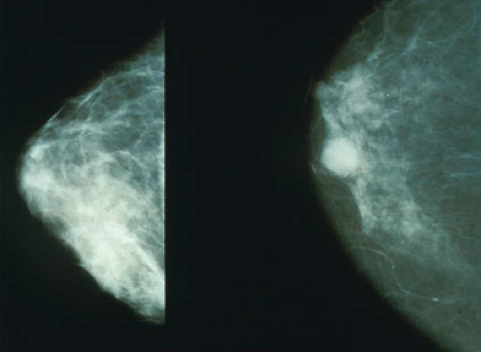 AI Could Make Up For Lack Of Radiologists In Fight Against Breast Cancer, But It Isn't Ready Yet