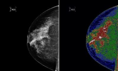 Crowdsourced AI Challenge To Enhance Mammogram Analysis Ends